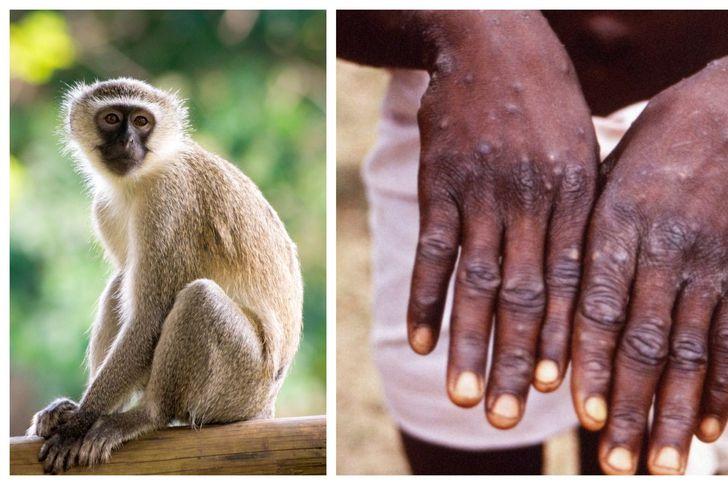 """جو 24 : """"جدري القردة"""".. مرض نادر ولا لقاح له"""
